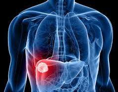 Napoli, prima terapia sperimentale su epatocarcinoma